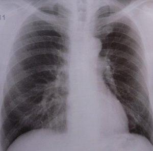 Betriebshaftpflicht Radiologe